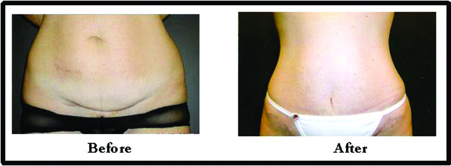 Plastic Surgery Before And After Tummy Tuck submited images.