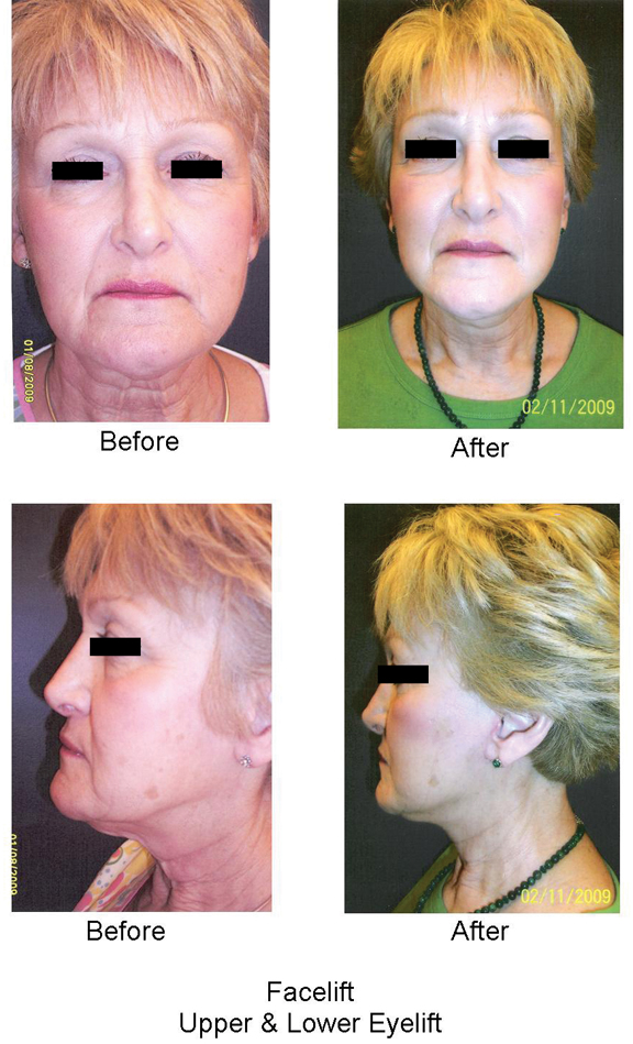 apsc_Facelift before and after