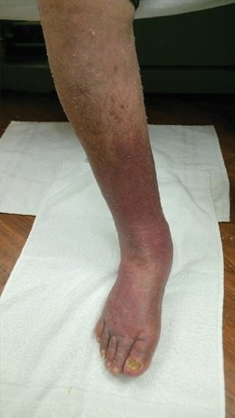 Lymphedema_Cellulitis_jfm15