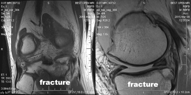 3t-MRI_AMJ15_Fracture