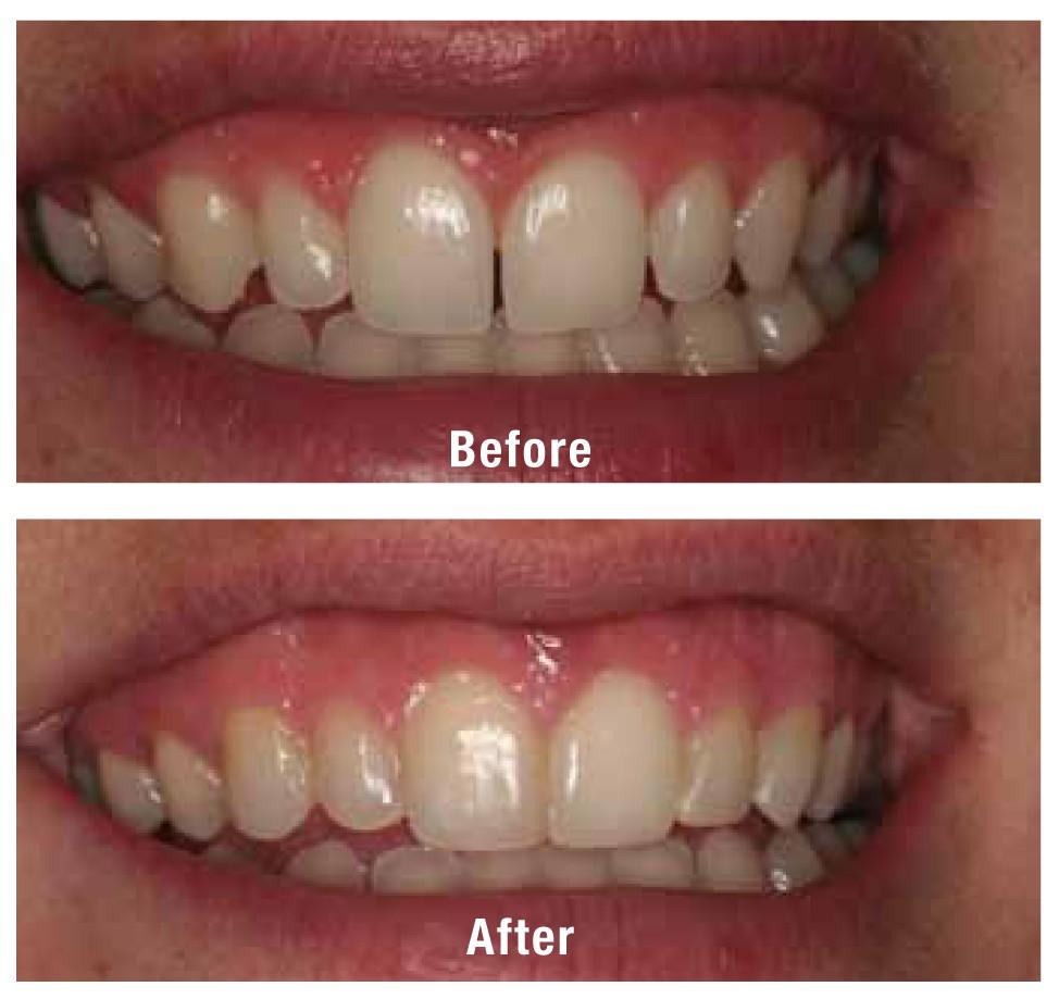 anna_giacalone_dentist_case_1_amj15