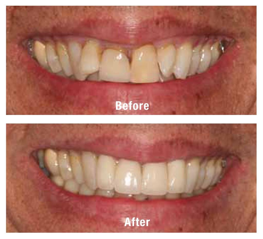 anna_giacalone_dentist_case_2_amj15