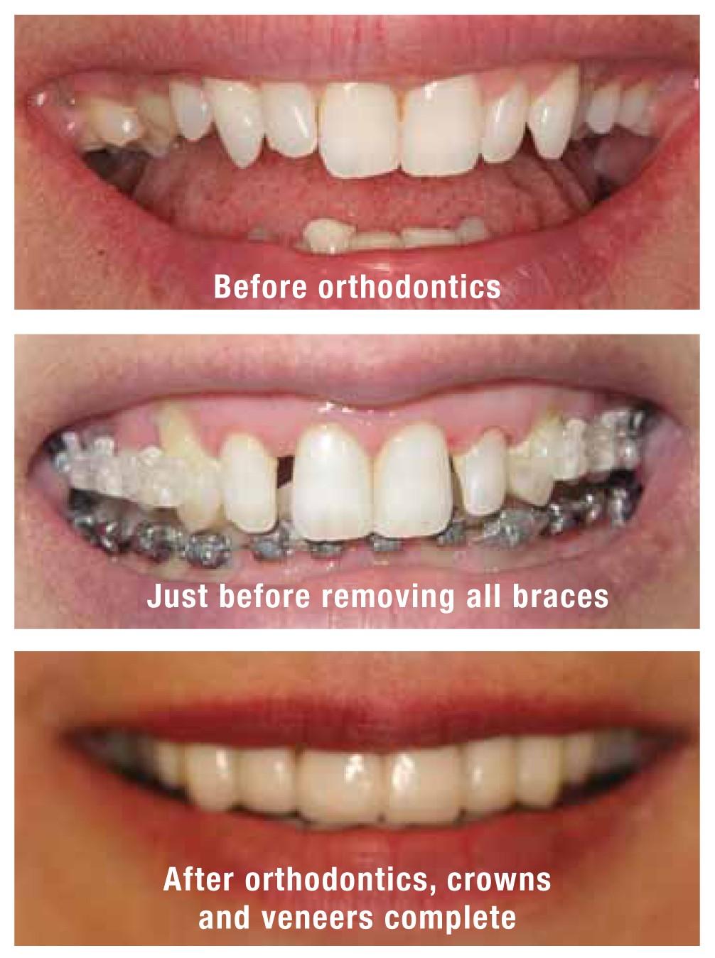 anna_giacalone_dentist_case_3_amj15
