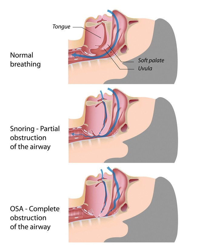 ditty_kent_fm16_obstructive-sleep-apnea