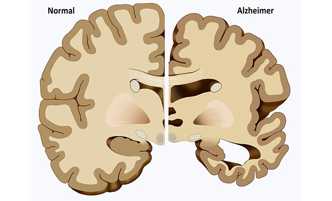 confirming alzehimers disease Alzheimer's disease affects 57 million americans, and that number is expected to reach 14 million by the year 2050 to date, most of the research on the disease's effects on the brain has been done postmortem.