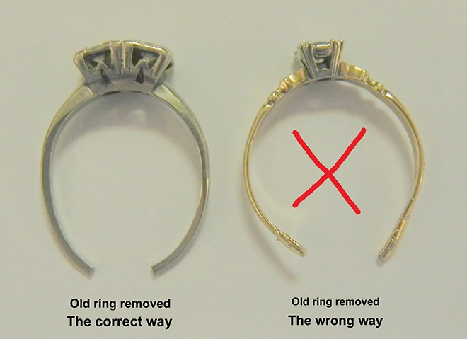 sayers_ring_removal_ond17