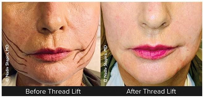 THREAD-LIFT: A New Approach For Facial Rejuvenation – The