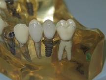 anna_teeth_ond13