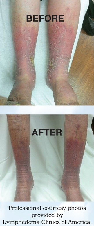 Swelling In Your Body May Be A Condition Known As Lymphedema