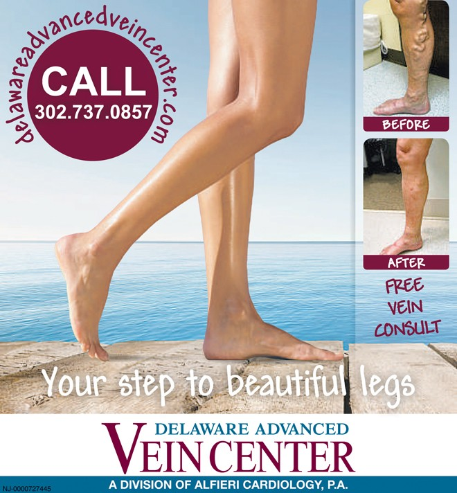 Clearing Up Five Myths About Varicose Veins
