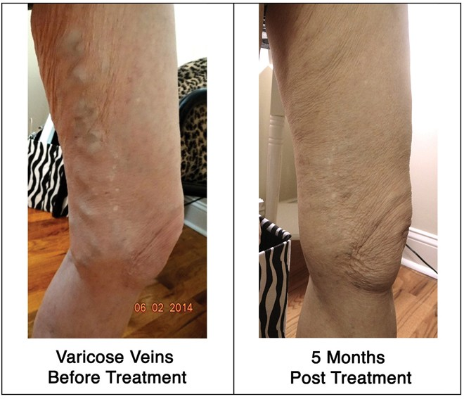 A Three-Tier Approach to Spider Vein Treatment, The Women's Journal