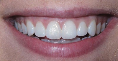 All About Whitening