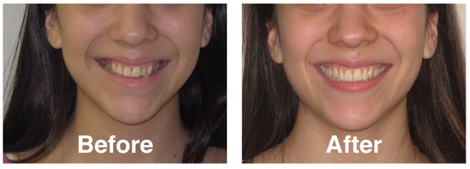 Six Things Parents Need To Know About Invisalign® Teen, The Women's Journal