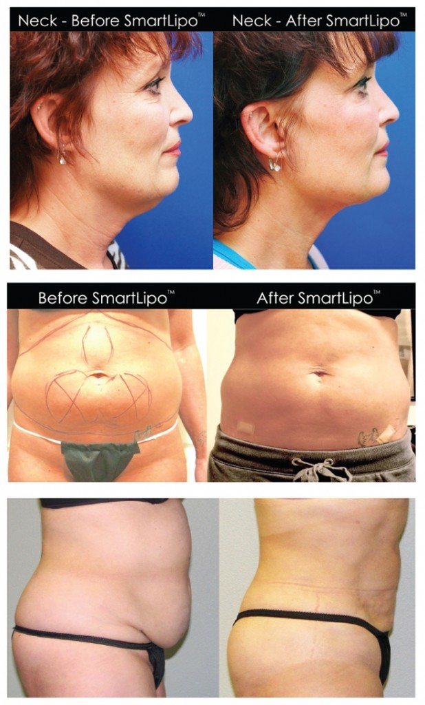 How Does Smartlipo Triplex® Differ From Surgical Liposuction? And More Frequently Asked Questions