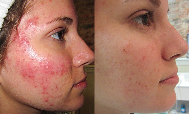 Clear Your Acne Without Prescriptions Or Lasers