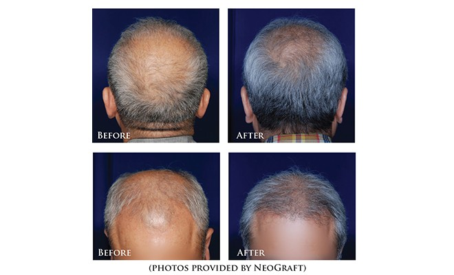 Restore Your Own Hair Successfully With NeoGraft