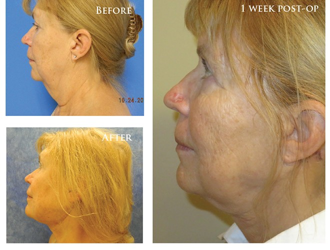 Restore Your Own Hair Successfully With NeoGraft, The Women's Journal