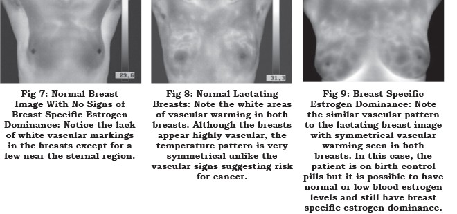 Thermography And Evaluating The Effects Of Estrogen On The Breasts, The Women's Journal