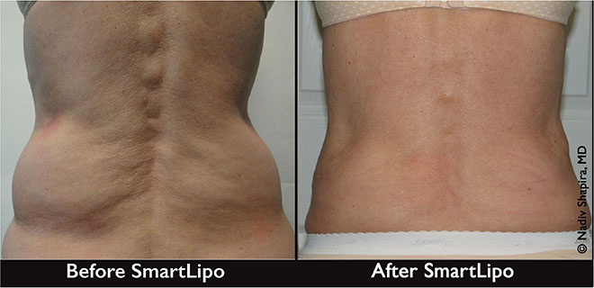 Smartlipo Triplex® For The Immediate Removal Of Fat, The Women's Journal