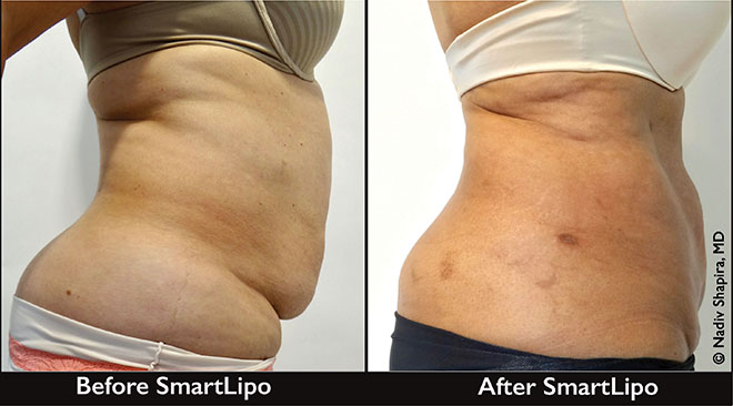 Smartlipo Triplex® For The Immediate Removal Of Fat