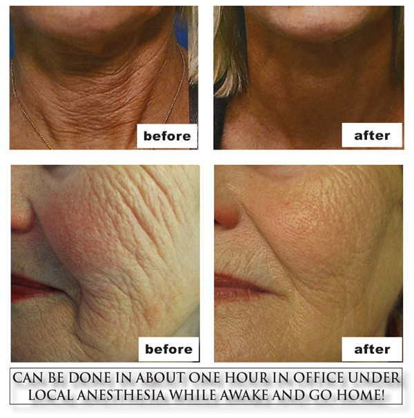 Rejuvenate Your Face & Body With Dr. Kim & Dr. Wingate, The Women's Journal