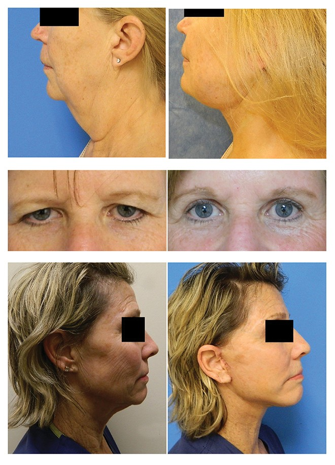 Look Younger With Help From Dr. Kim & Dr. Wingate