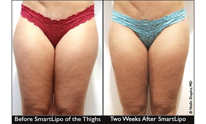SmartLipo®- The Quick & Permanent Solution To Unwanted Fat