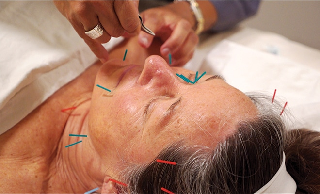 Regenerative Effects Of Acupuncture & OM