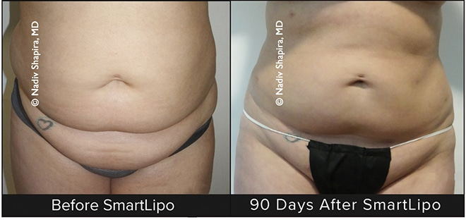 Yes, It's Very Difficult to Lose Weight . . . That's Why We Have SmartLipo!
