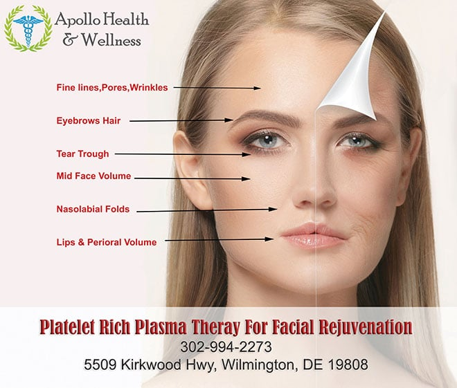 Platelet Rich Plasma In Facial Aesthetics