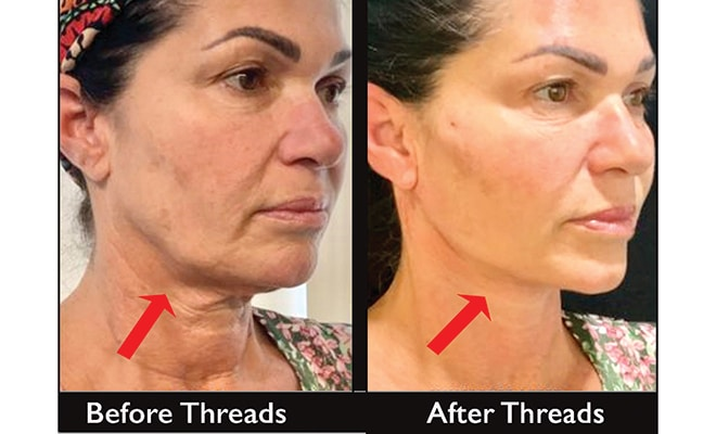 Lose 10 Years With A Non-Invasive Thread Lift!, The Women's Journal
