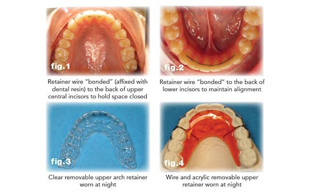 The Key To Maintaining Your New Smile, The Women's Journal