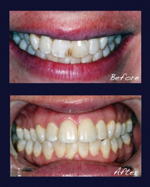 Unsightly, Chipped, Worn and Discolored Teeth Prematurely Age the Smile.