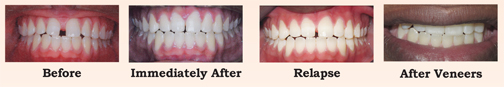 Relapse After Braces, The Women's Journal